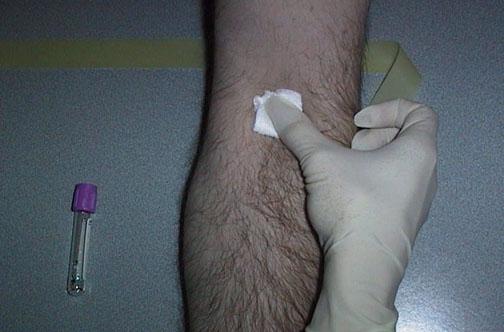 بالصــــور. طريقة سحب الدم من المريض PHLEB05