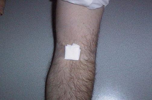 بالصــــور. طريقة سحب الدم من المريض PHLEB06