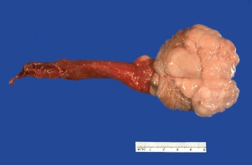 Testis seminoma gross
