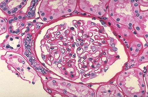 Image Gallery Normal Glomeruli