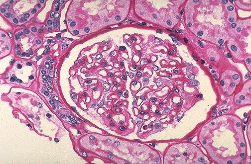Image Gallery Normal Glomeruli
