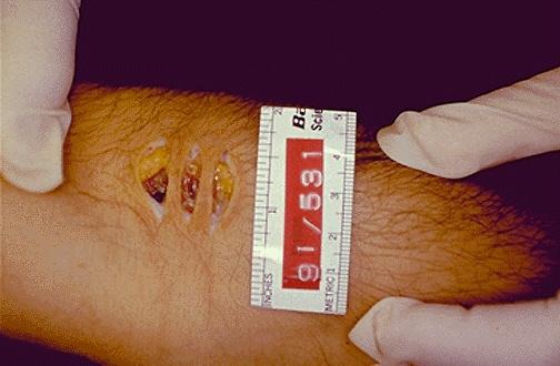 Forensic Pathology – Medical Examiner Job Description
