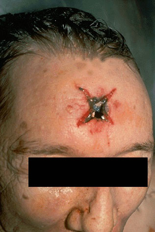 MedlinePlus: Head and Neck Cancer - National Library of