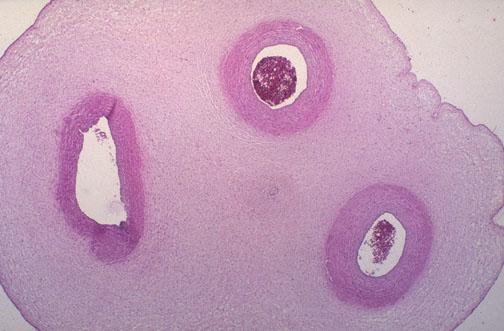 Umbilical Cord Histology Placental Pathology