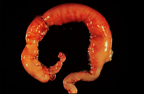 Pathology Outlines Hirschsprung Disease