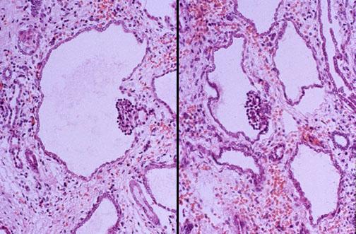 Renal Cystic Disease
