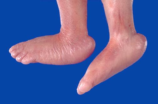 Treatment adults clubfoot