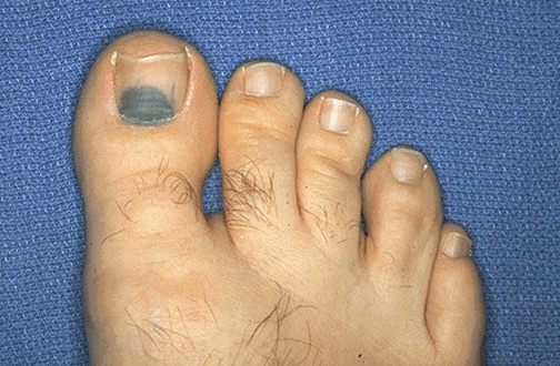 A Localized Collection Of Blood Outside The Vascular System Within Tissues Is Known As Hematoma Here Small Under Toenail Following