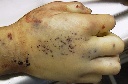Forensic Pathology