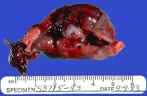 Female Genital Pathology