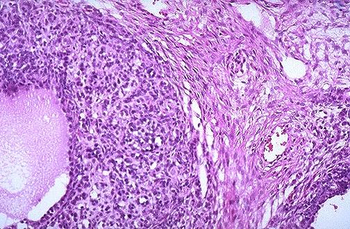 Ovarian granulosa cell tumor, power FEM058.jpg