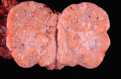Ovarian dysgerminoma gross