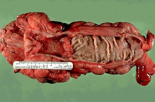tumoare maligna colon