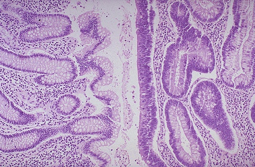 Pathology Outlines - Adenoma overview