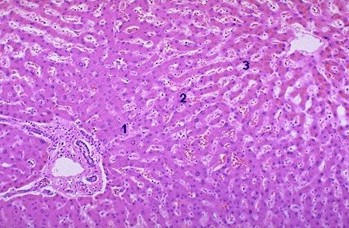 Hepatic Pathology