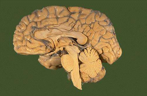 Cerebro humano corte sagital submited images