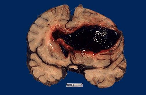 cns pathology