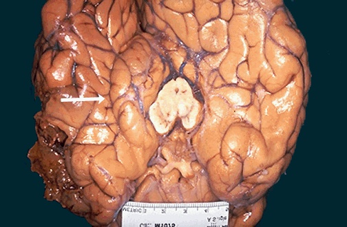 acute brain swelling in the closed cranial cavity is serious swelling of the left cerebral hemisphere has produced a shift with herniation of the uncus of