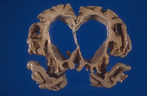 cns degenerative diseases tutorial, Skeleton