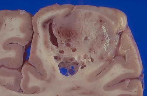sintomi malato terminale tumore
