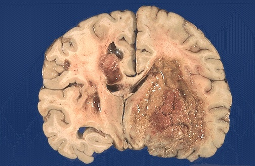 Pathology Outlines - Glioblastoma multiforme