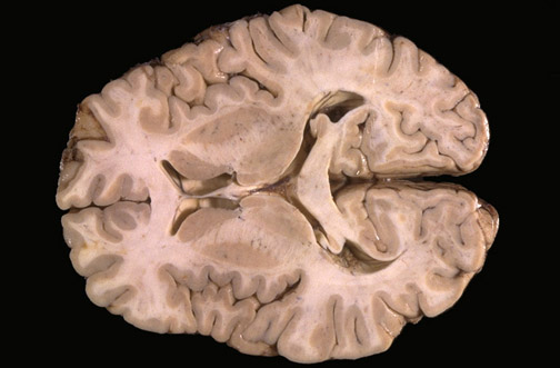 Caudate Nucleus And Fornix Neuroanatomy