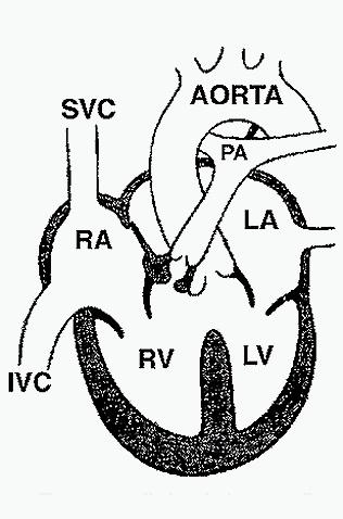 Heart, tetralogy Fallot, diagram picture CV102.jpg