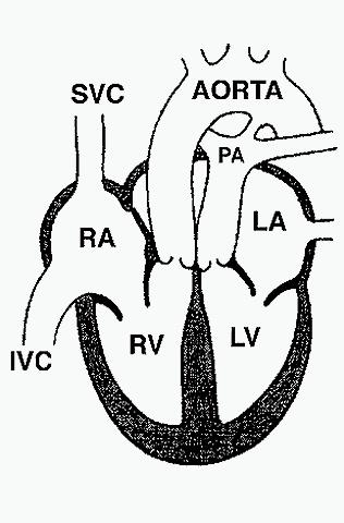 Heart, transposition great vessels, diagram CV104.jpg