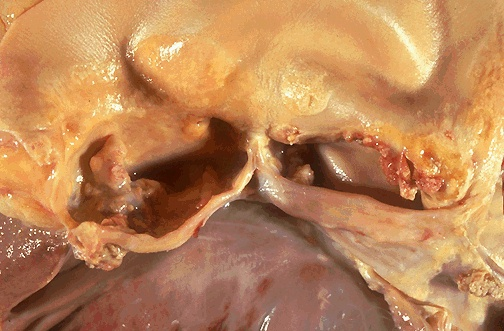 Aortic valve, bicuspid, gross picture CV113.jpg