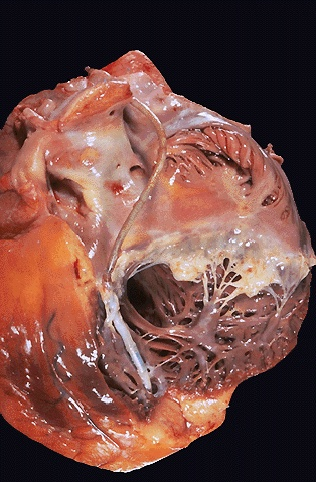 Heart with pacemaker, gross picture CV140.jpg