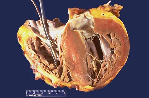 Heart, hypertrophic cardiomyopathy, explanted heart, CV169.jpg
