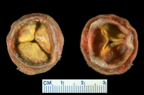 Porcine valve bioprosthesis, gross picture CV181.jpg