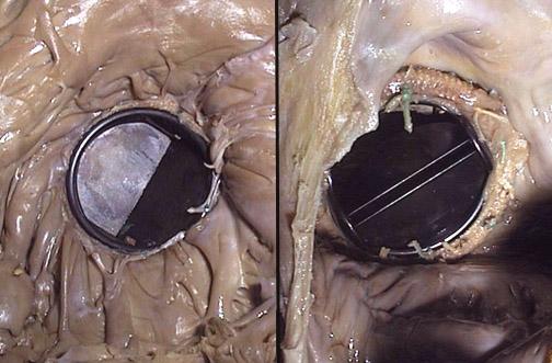 Mechanical valve prosthesis, tilting disk, CV182.jpg