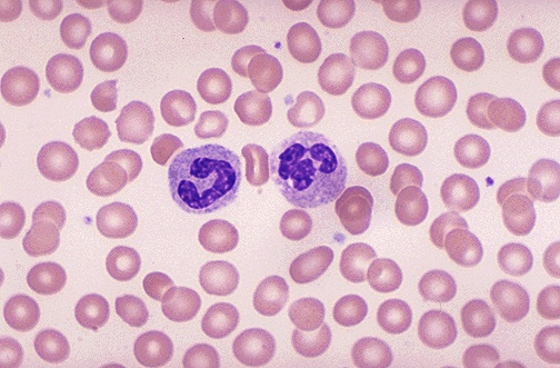 Healthy Red Blood Cells Under Microscope