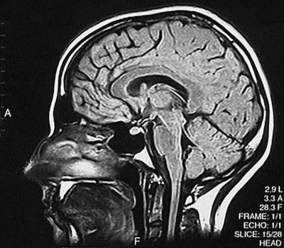 MRI Scan, Sagittal FLAIR